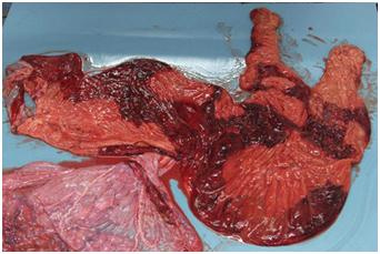 Placentitis